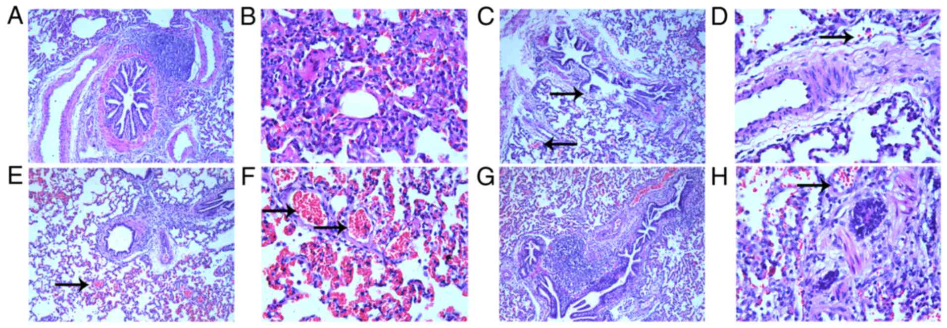 Histological Analysis Of Pulmonary Damage In The Following Experimental Animal Groups Control A Magnification X100 And B X400 Acute