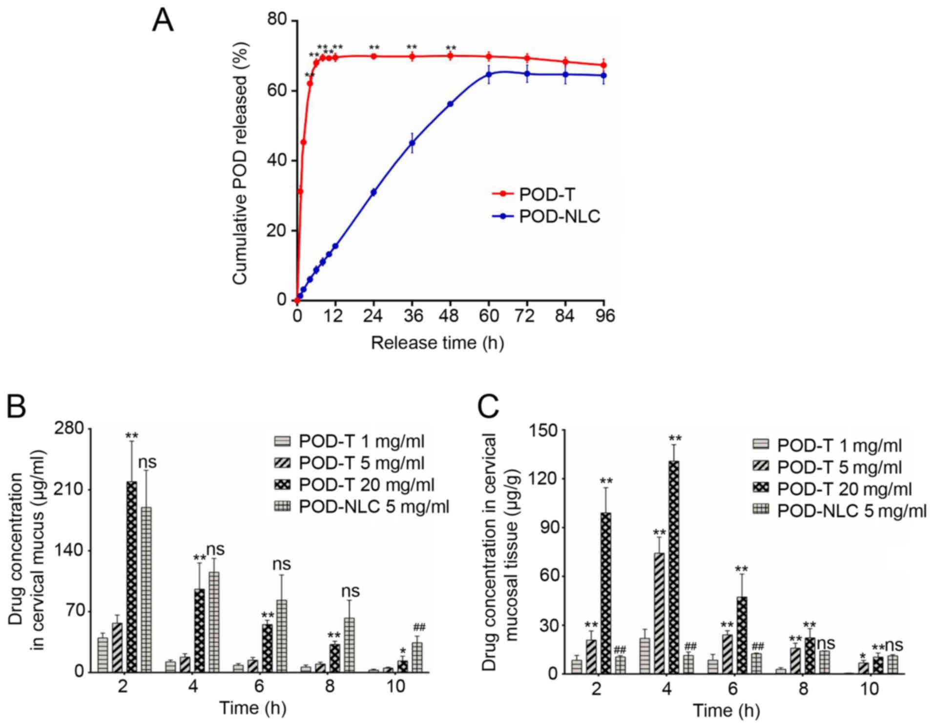 Development of podophyllotoxin‑loaded nanostructured lipid