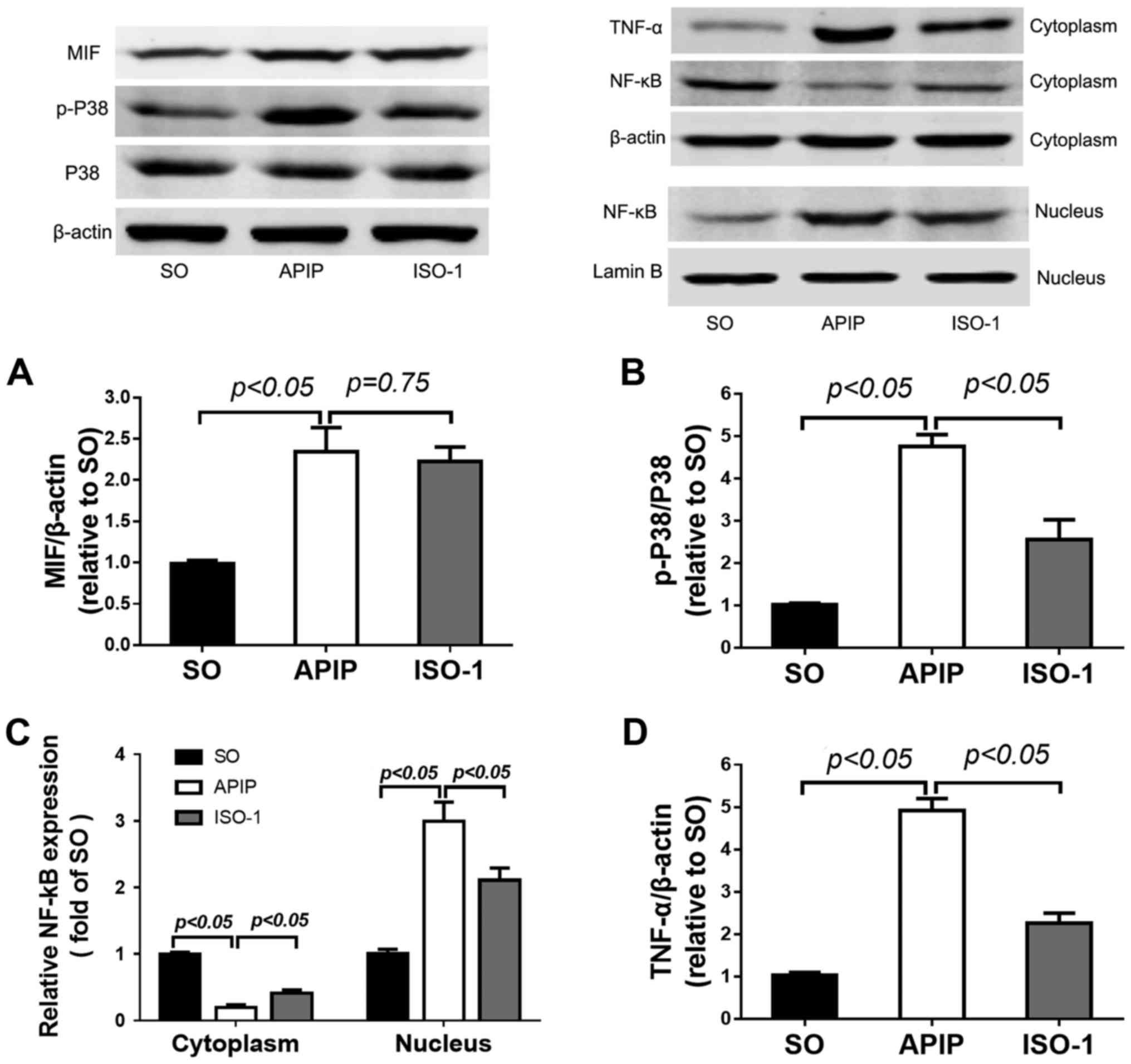 Macrophage migration inhibitory factor antagonist (S,R)3‑(4 ...