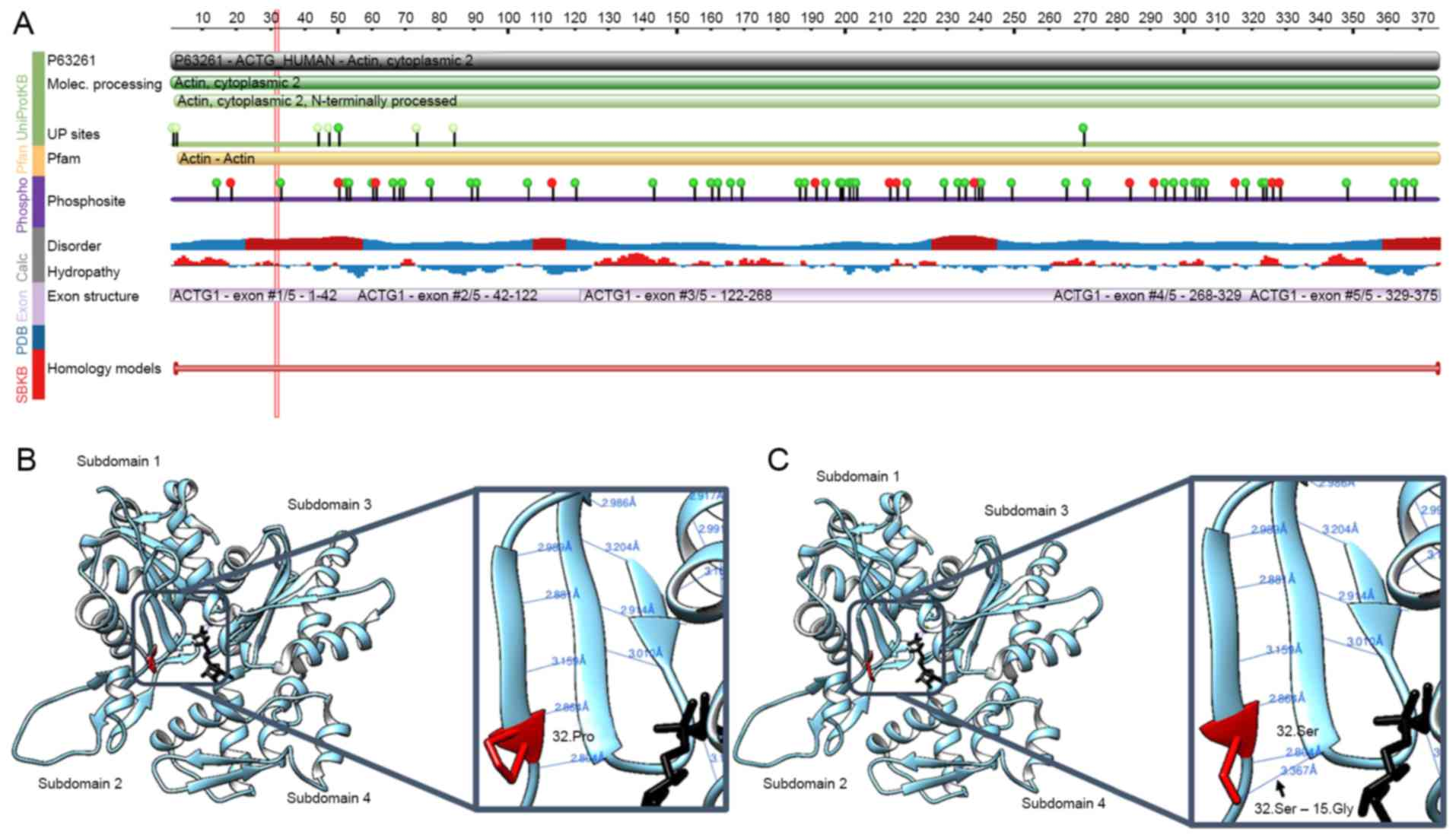 A novel missense mutation in the ACTG1 gene in a family with