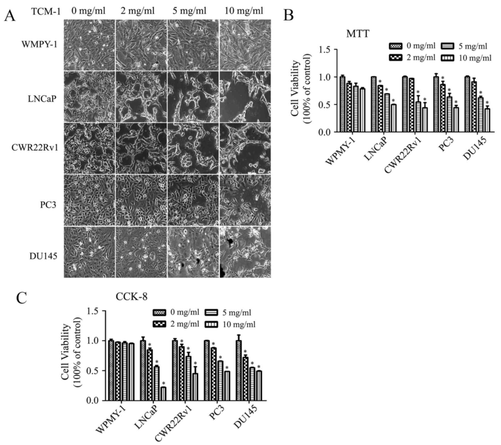 Lutecio-177-PSMA-617 en cáncer de próstata metastásico de bajo volumen