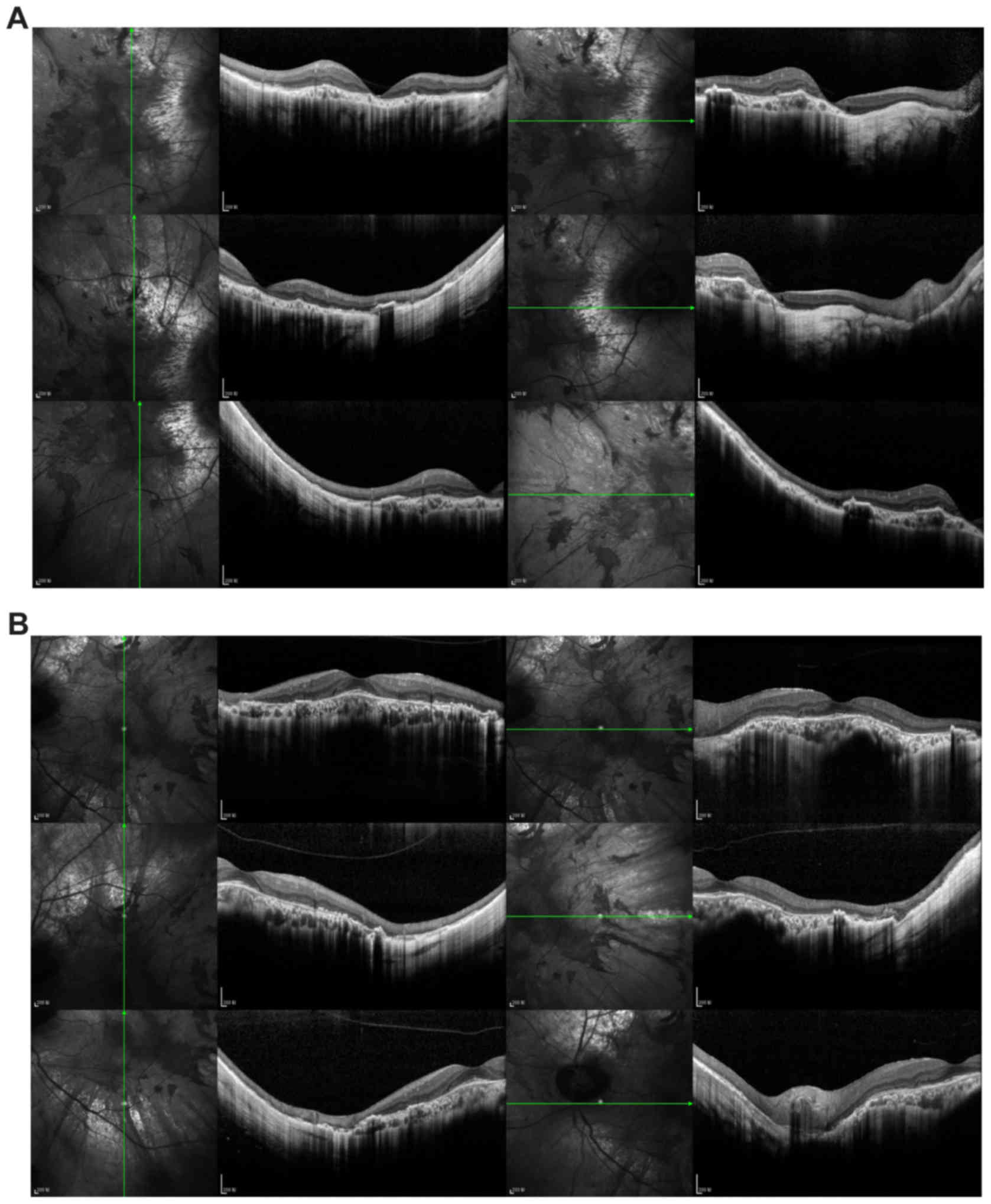 Figure 4 Fundus Autofluorescence Image Demonstrating Areas Of Residual Retinal Pigment Epithelium RPE And The Corresponding Optical Coherence Tomography