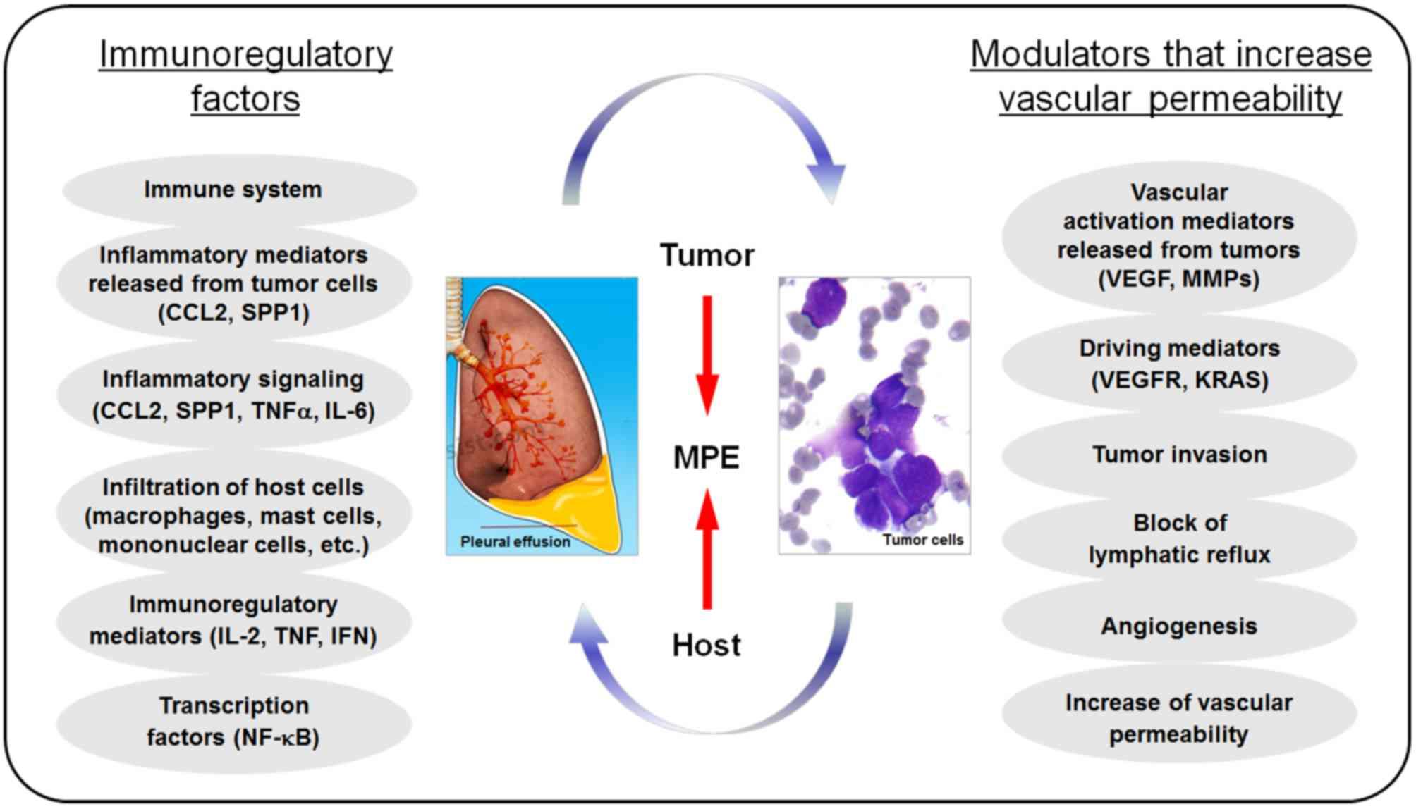 Sindrom Deimons Meigs - Peritoneal cancer pleural effusion