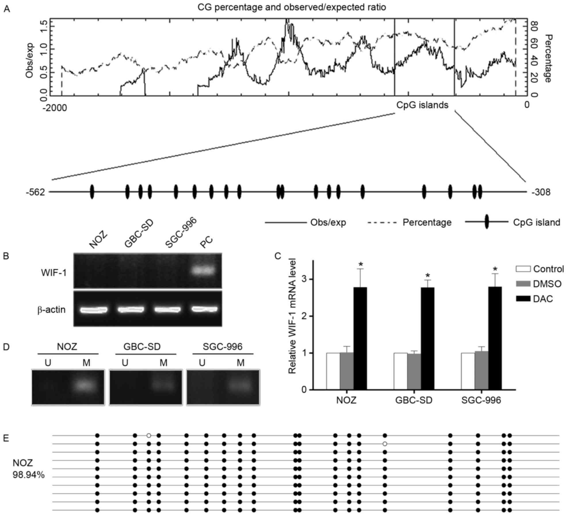 c‑Jun suppresses the expression of WNT inhibitory factor 1