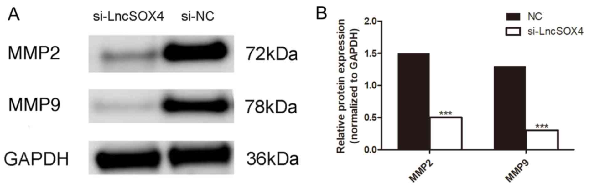LncSOX4 serves an oncogenic role in the tumorigenesis of epithelial ...