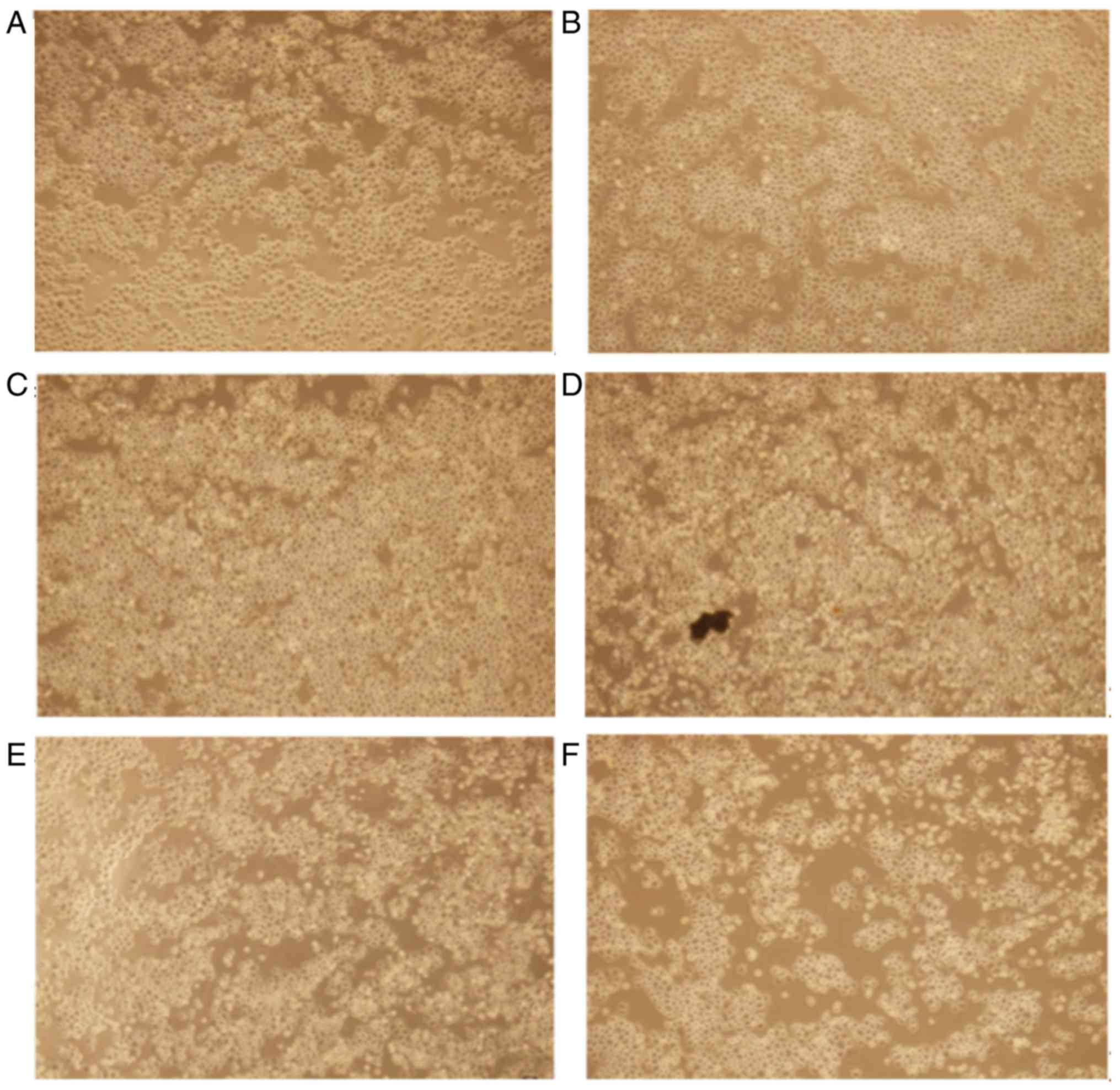 Propranolol induces hemangioma endothelial cell apoptosis via a p53