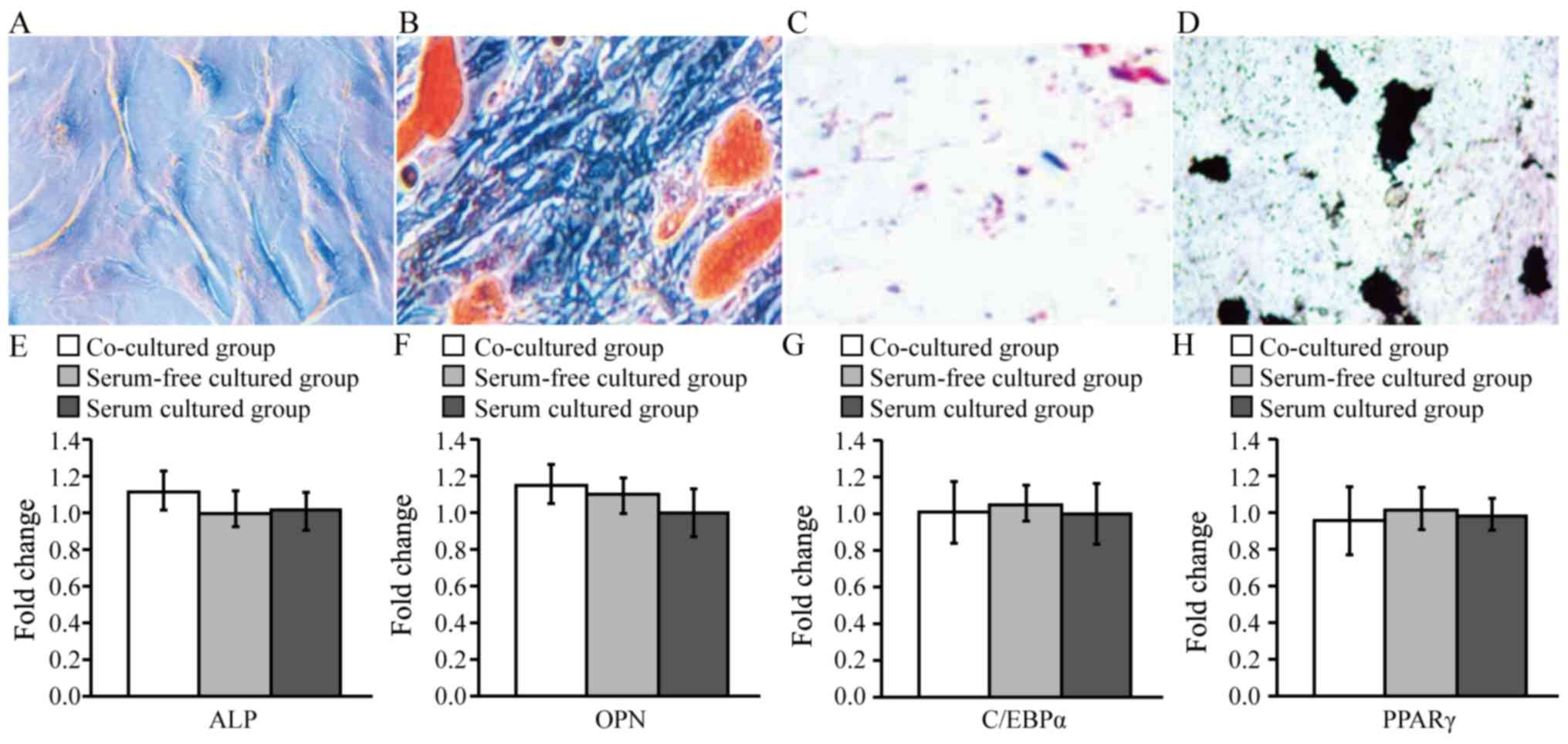 Effect Of Coculture With Amniotic Epithelial Cells On The Crystal Change Rc Boat Groups Mrna Expression E Alp And F Opn Osteogenic Markers Or G C Ebp H Ppar Adipogenic Among Three At 72 Culture