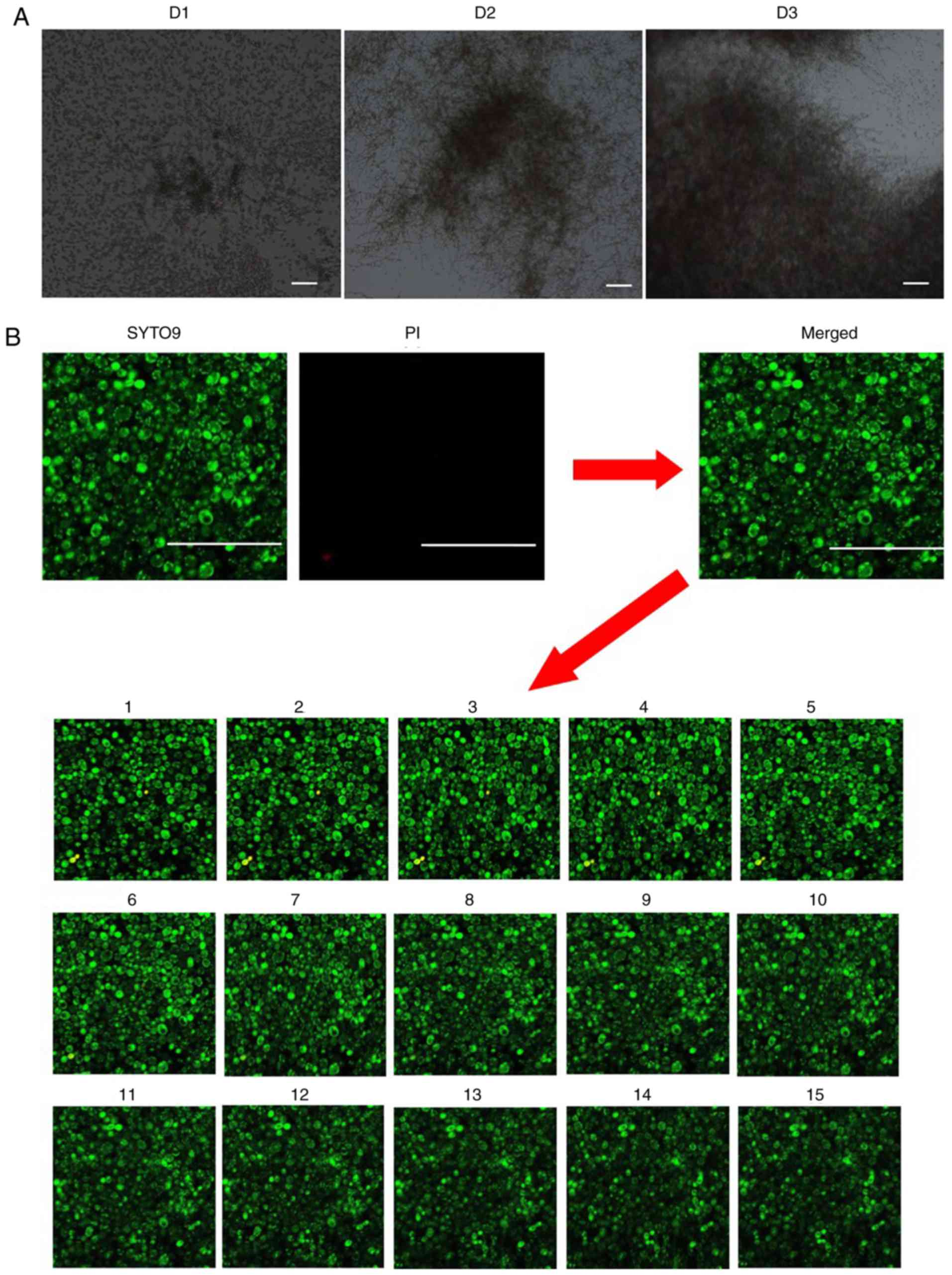 Application of 460 nm visible light for the elimination of Candida