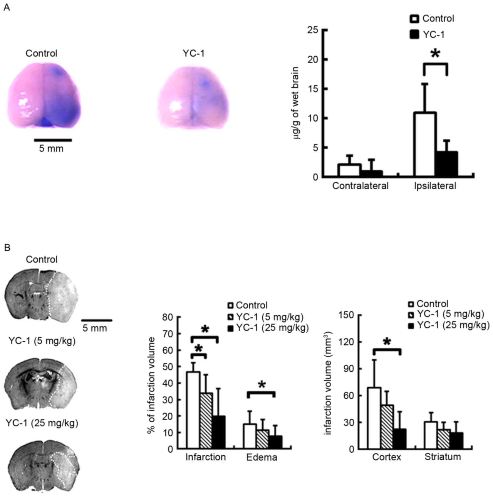 YC‑1 reduces inflammatory responses by inhibiting nuclear factor‑κB