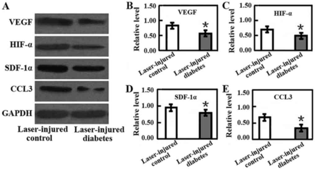 Groovy Streptozotocininduced Diabetic Mice Exhibit Reduced Experimental Wiring 101 Akebretraxxcnl