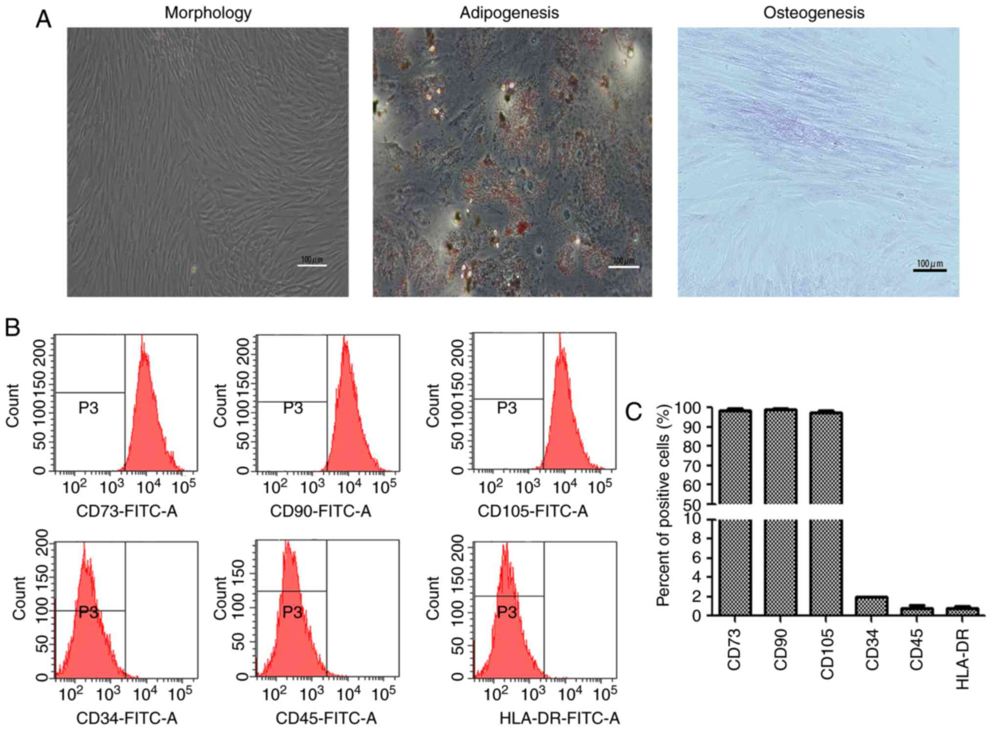 Human adipose‑derived mesenchymal stem cells promote breast