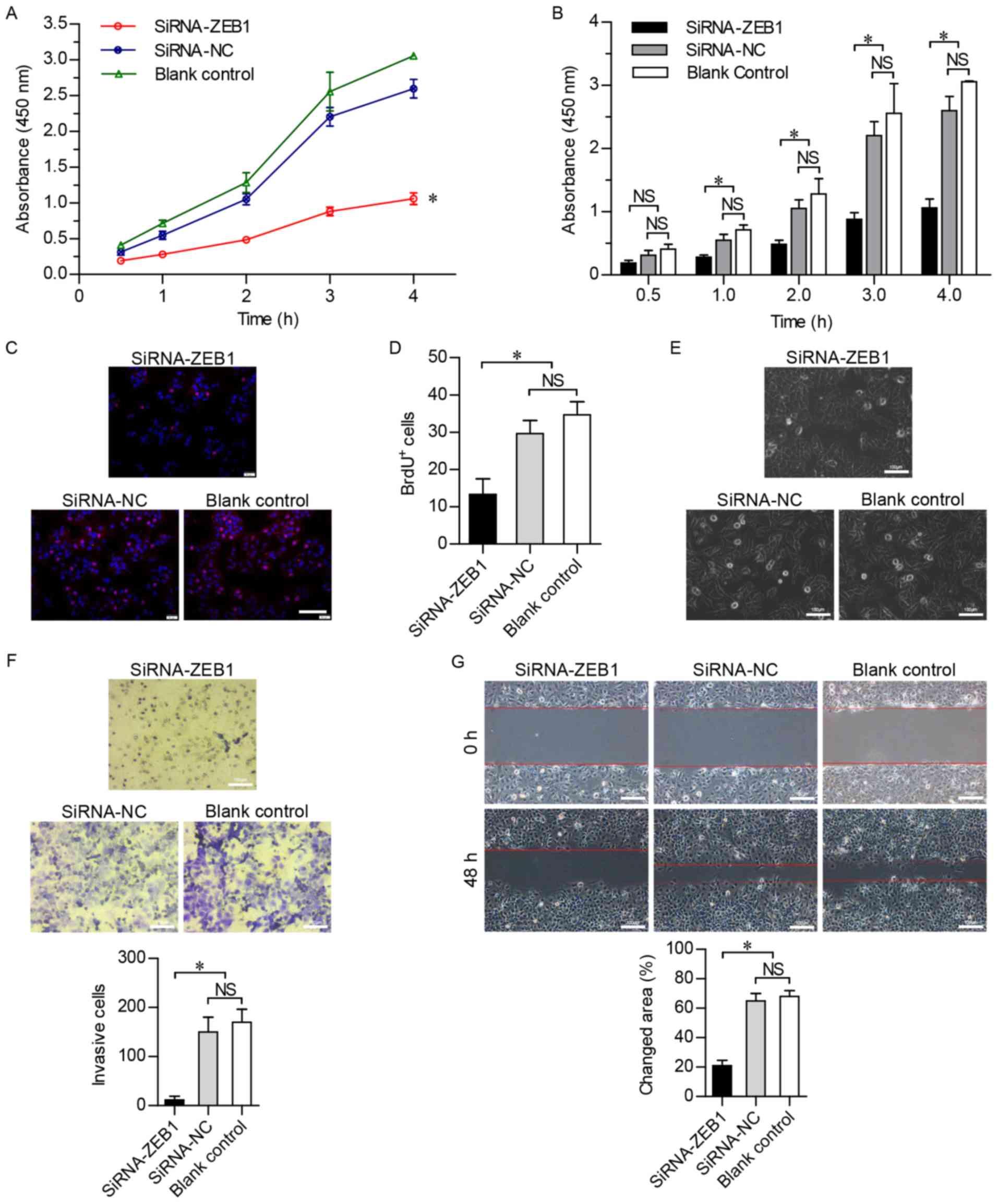 ZEB1 promotes tumorigenesis and metastasis in hepatocellular