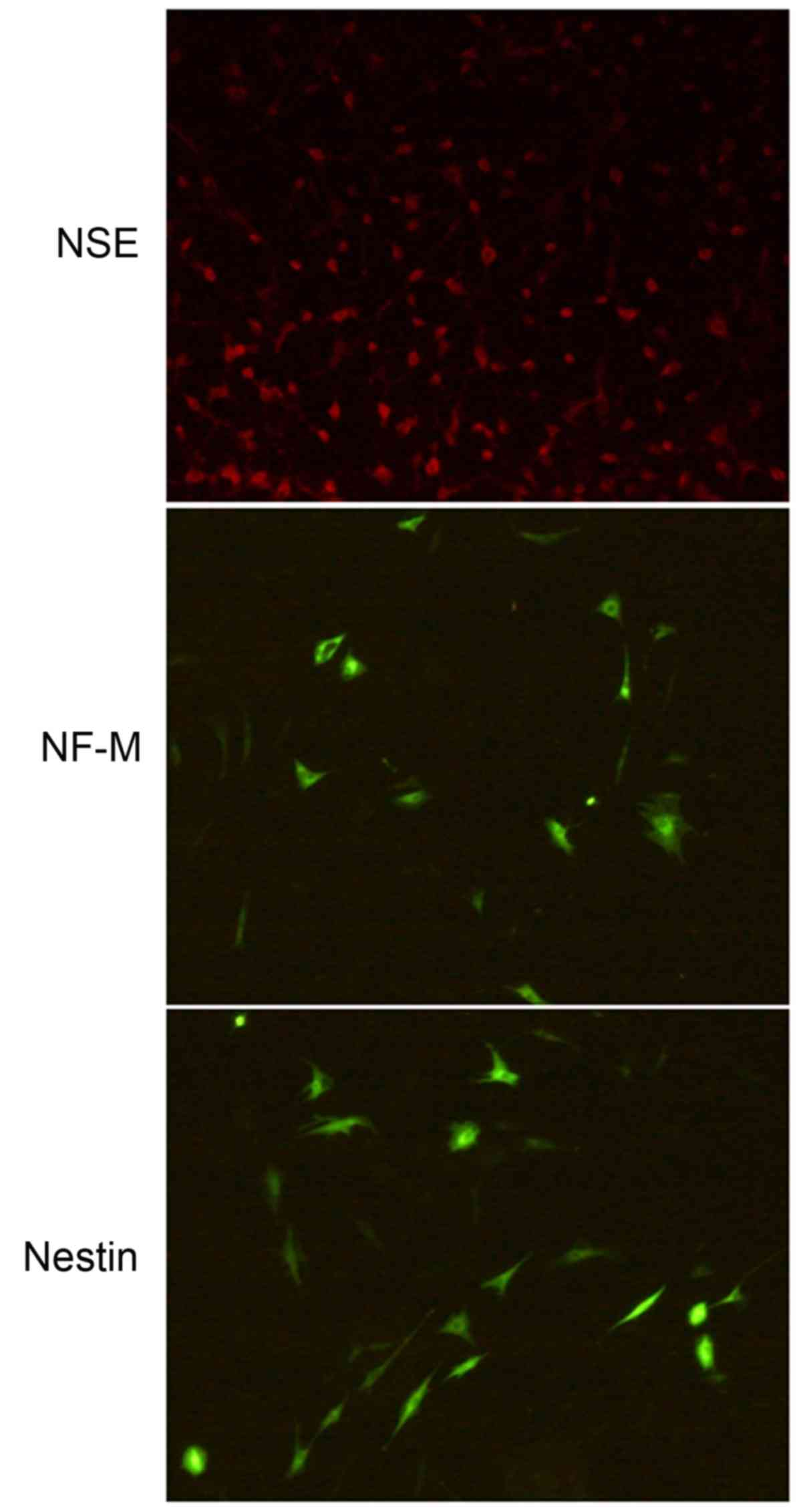 Fasudil may induce the differentiation of bone marrow