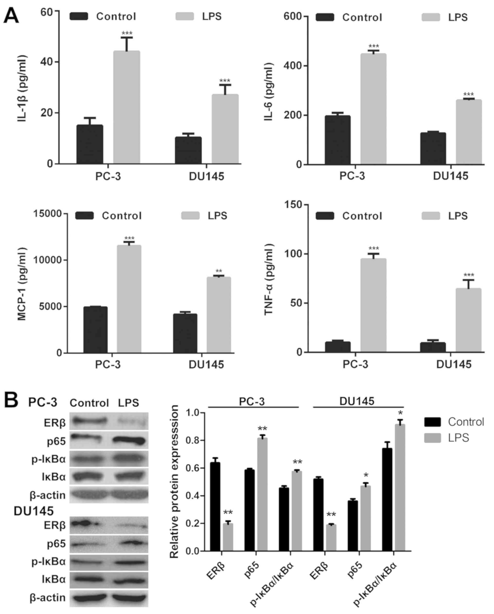 Estrogen receptor β suppresses inflammation and the