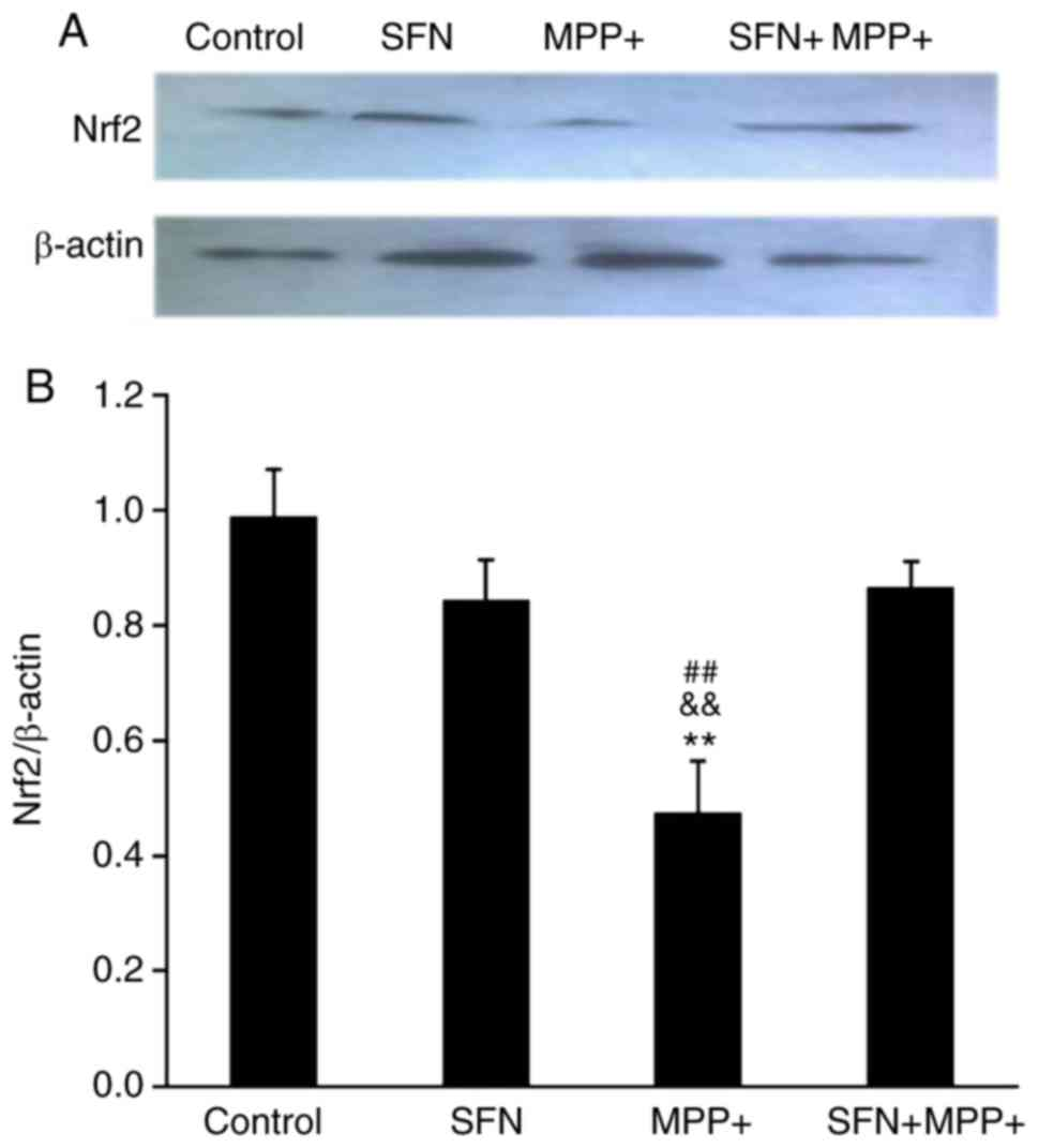 Sulforaphane prevents PC12 cells from oxidative damage via the Nrf2