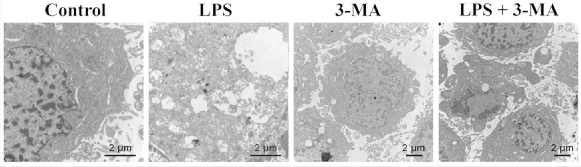 Role of autophagy in LPS‑induced inflammation in INS‑1 cells