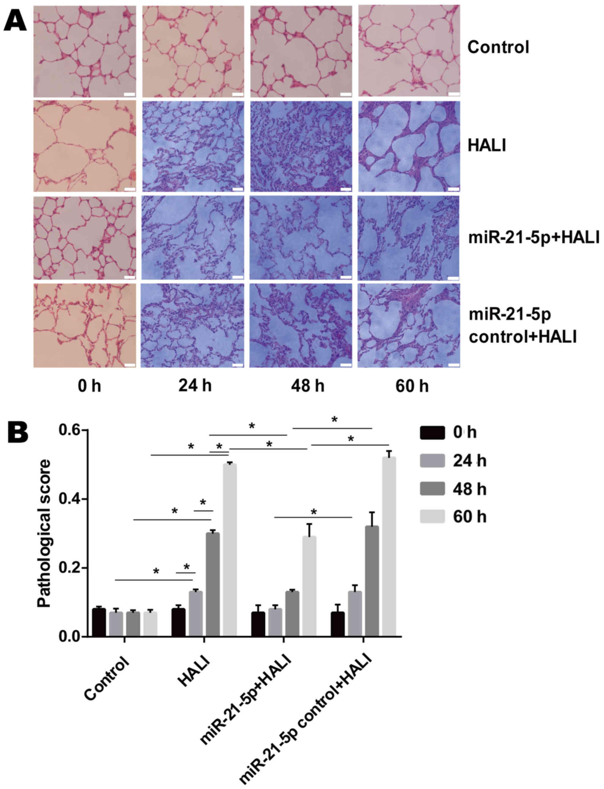 The antiinflammatory effects of AF-1 on bleomycin-induced