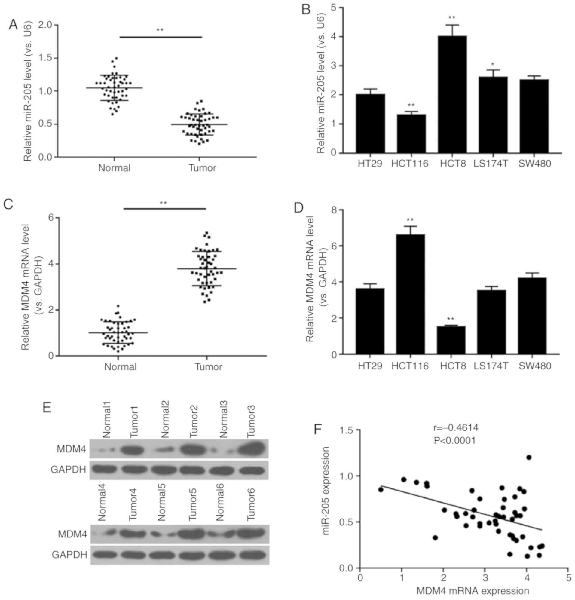 Mir 205 Suppresses Cell Migration Invasion And Emt Of Colon Cancer By Targeting Mouse Double Minute 4