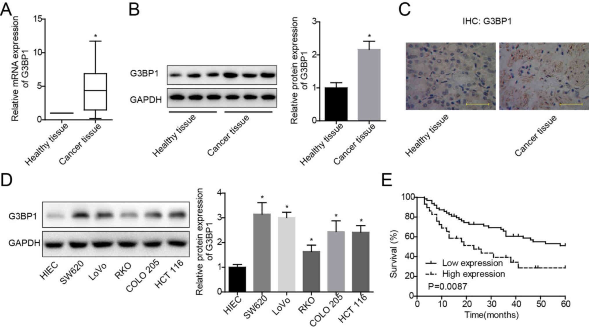 Overexpression Of G3bp1 Facilitates The Progression Of Colon Cancer By Activating B Catenin Signaling