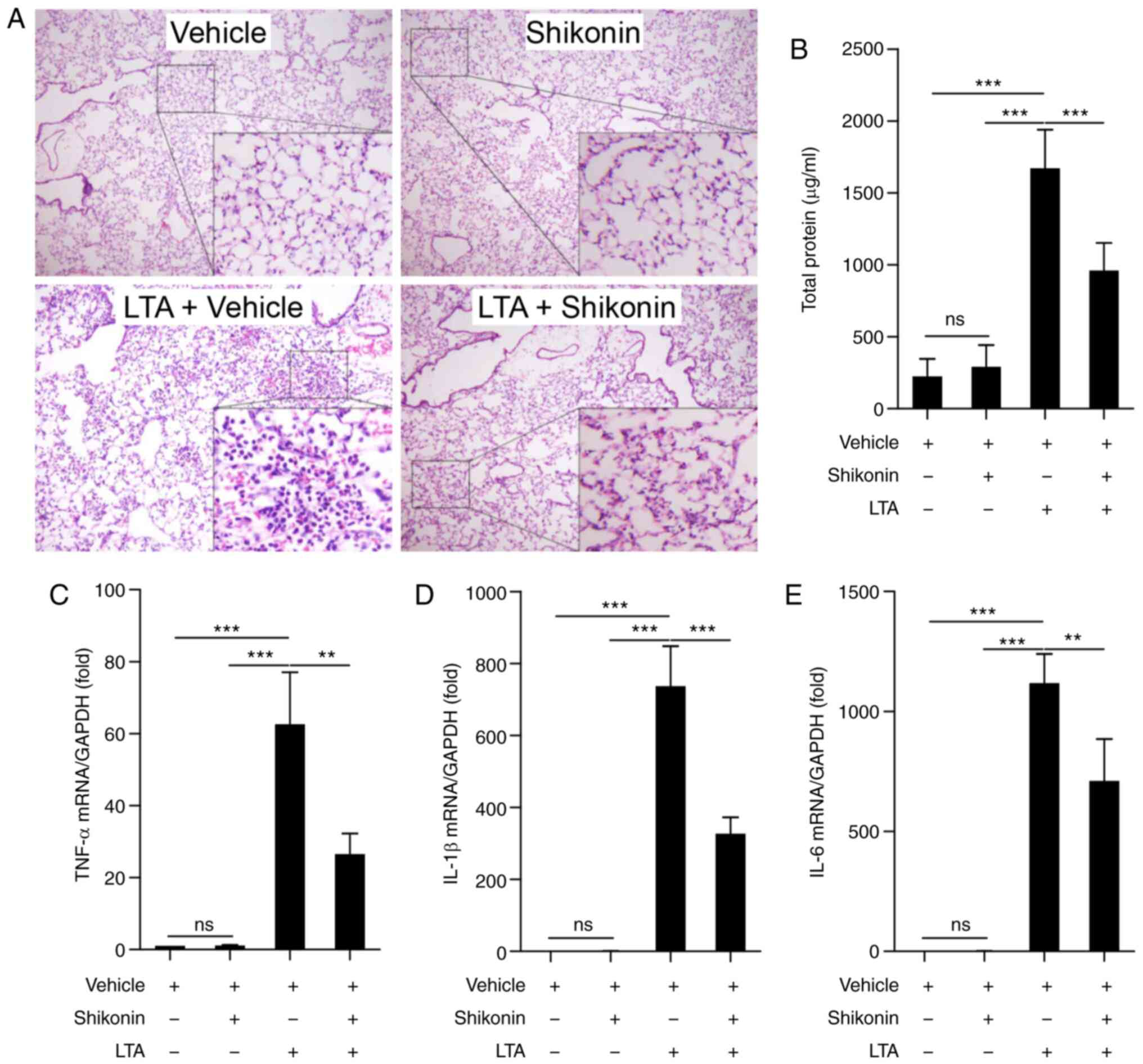 IJMS | Free Full-Text | Emodin Ameliorates LPS-Induced