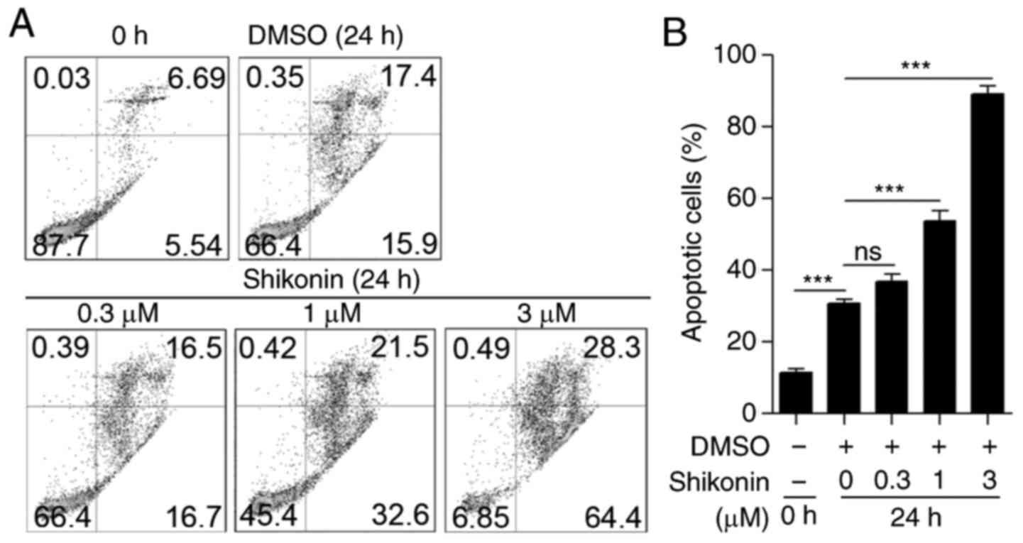 Shikonin ameliorates lipoteichoic acid‑induced acute lung