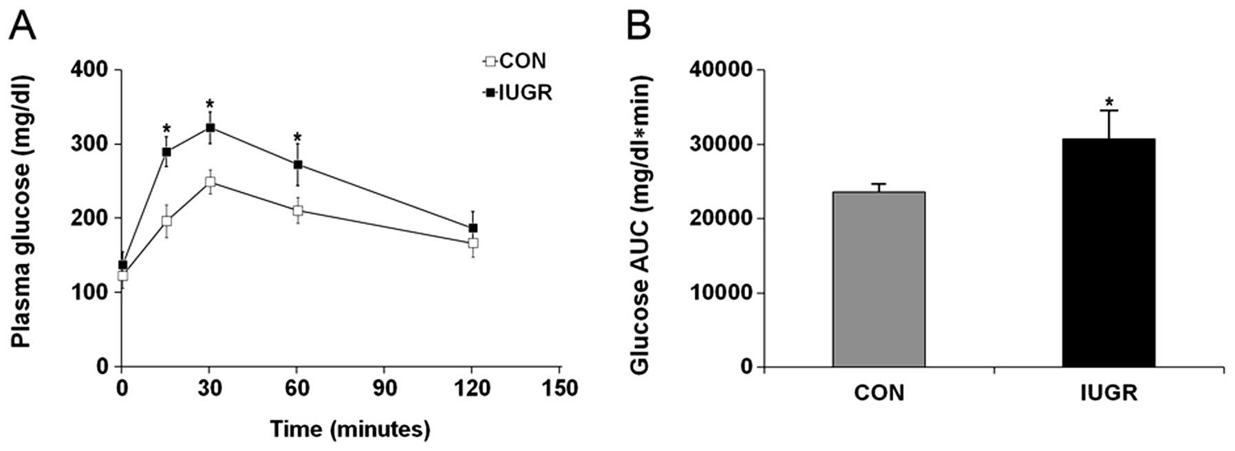 Maternal protein restriction in rats leads to reduced PGC-1α ...