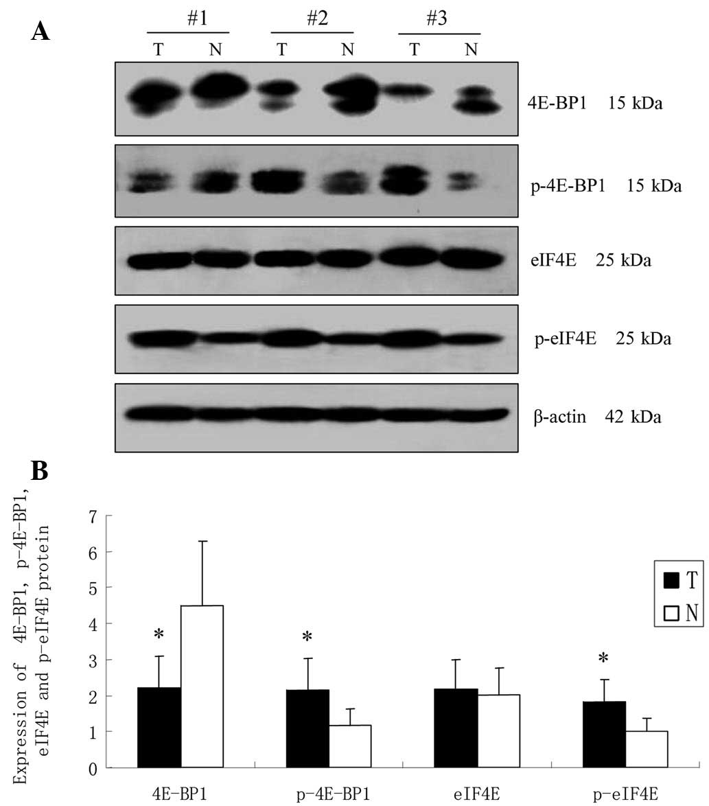 Putative Role Of The MTOR/4E-BP1 Signaling Pathway In The