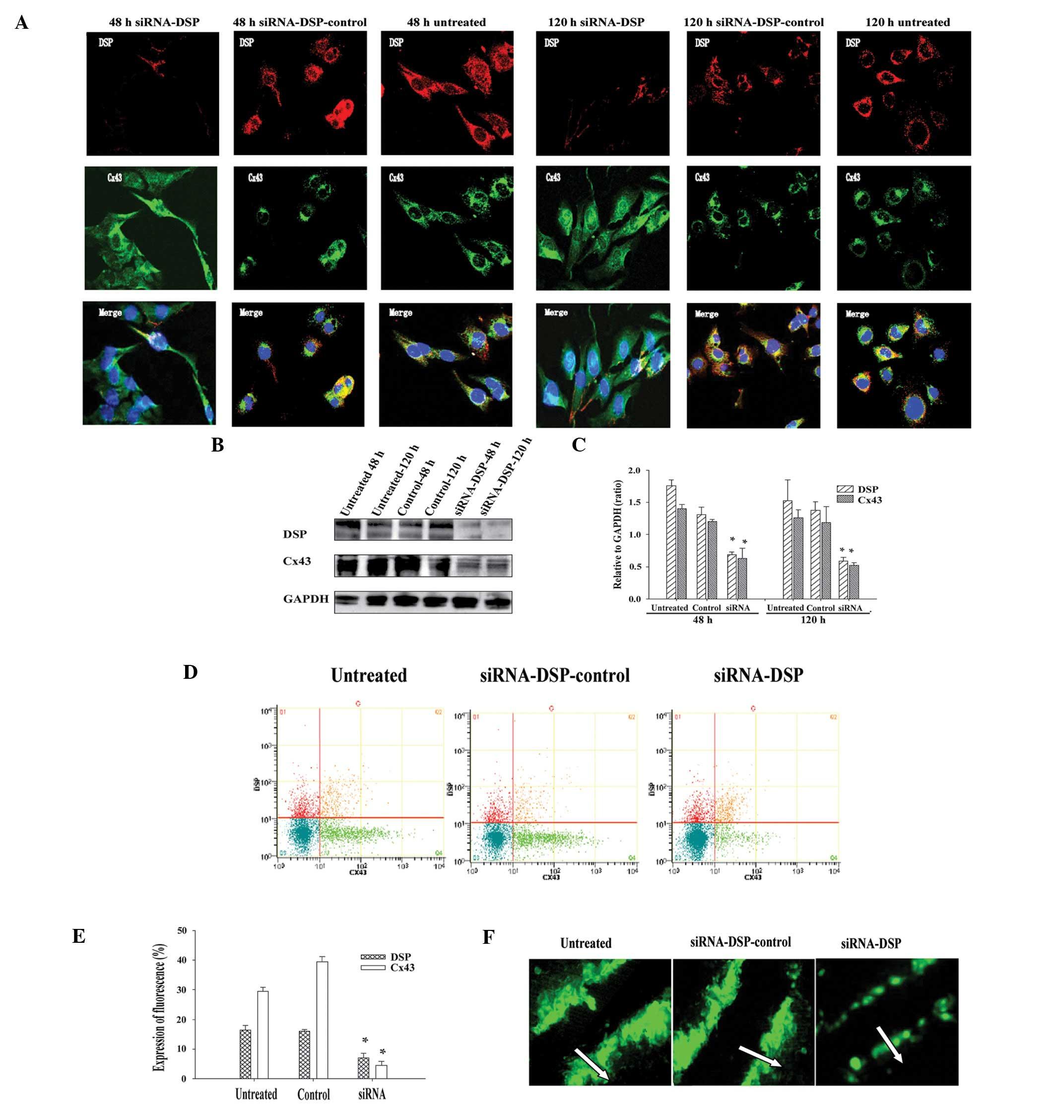 Silencing Of Desmoplakin Decreases Connexin43nav15 Expression And