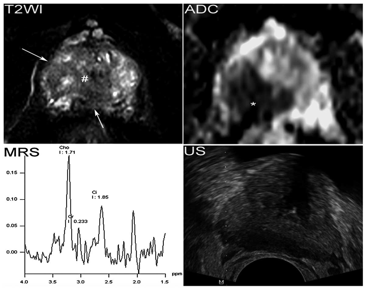 Magnetic resonance imaging‑directed biopsy improves the prediction ...