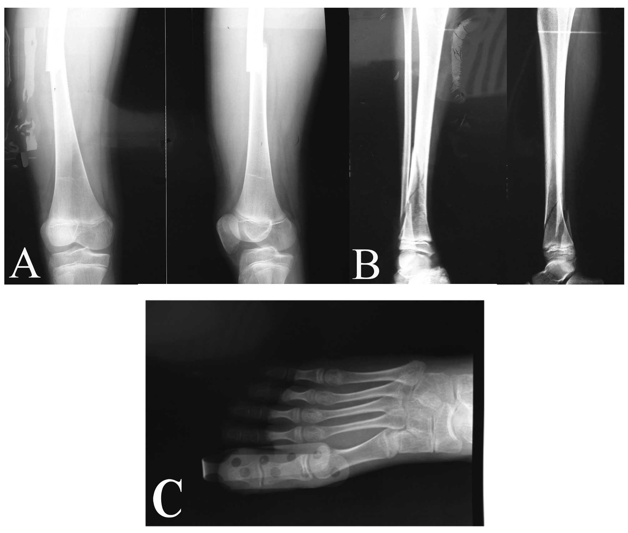 Speaking, Osteogenesis in adults impossible
