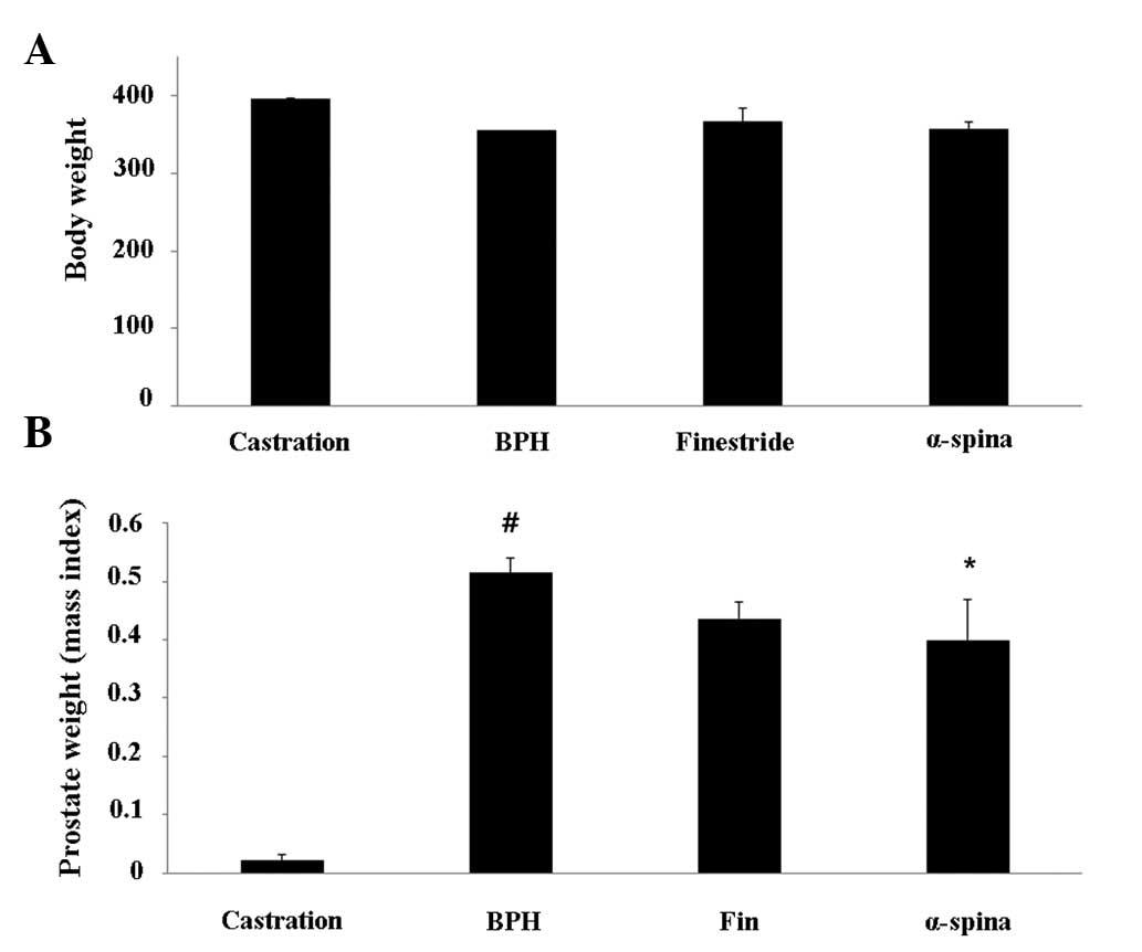 test propionate vs test phenylpropionate
