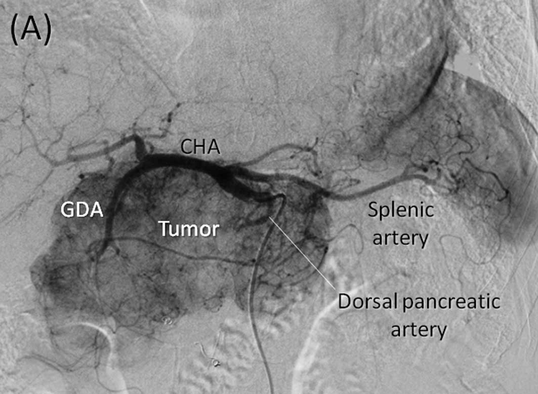 The New Luminos Drf moreover Somatom Definition As besides Basic Reading  puted Tomography Ct Of Brain together with Knee Dot Engine further NEJMicm990287. on computed tomography system
