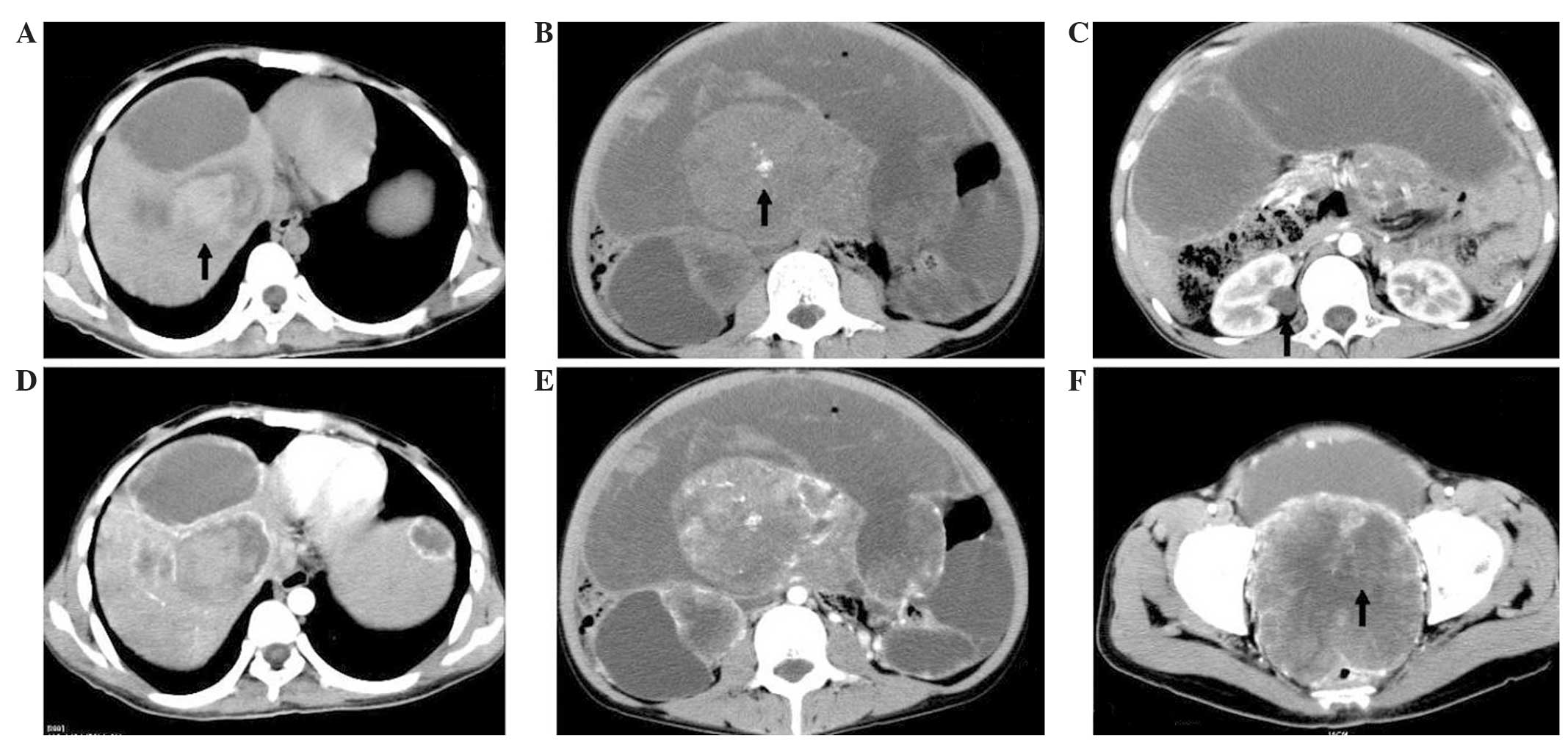 E Contrast Enhanced CT Image Of The Abdomen Same View As B Revealed A Heterogeneously Mass Lesion F Scan