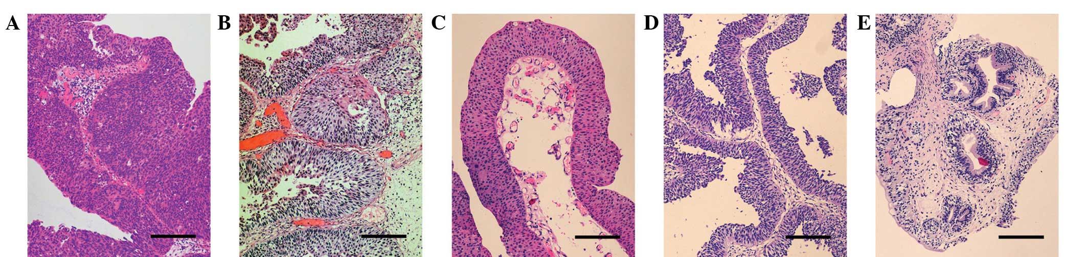 scurtă panglică scurtă descriere viermi în medicația unui copil