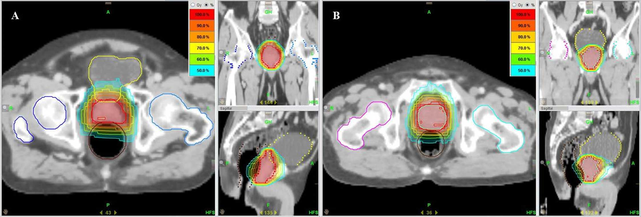 Salvage Helical Tomotherapy For Prostate Cancer Recurrence