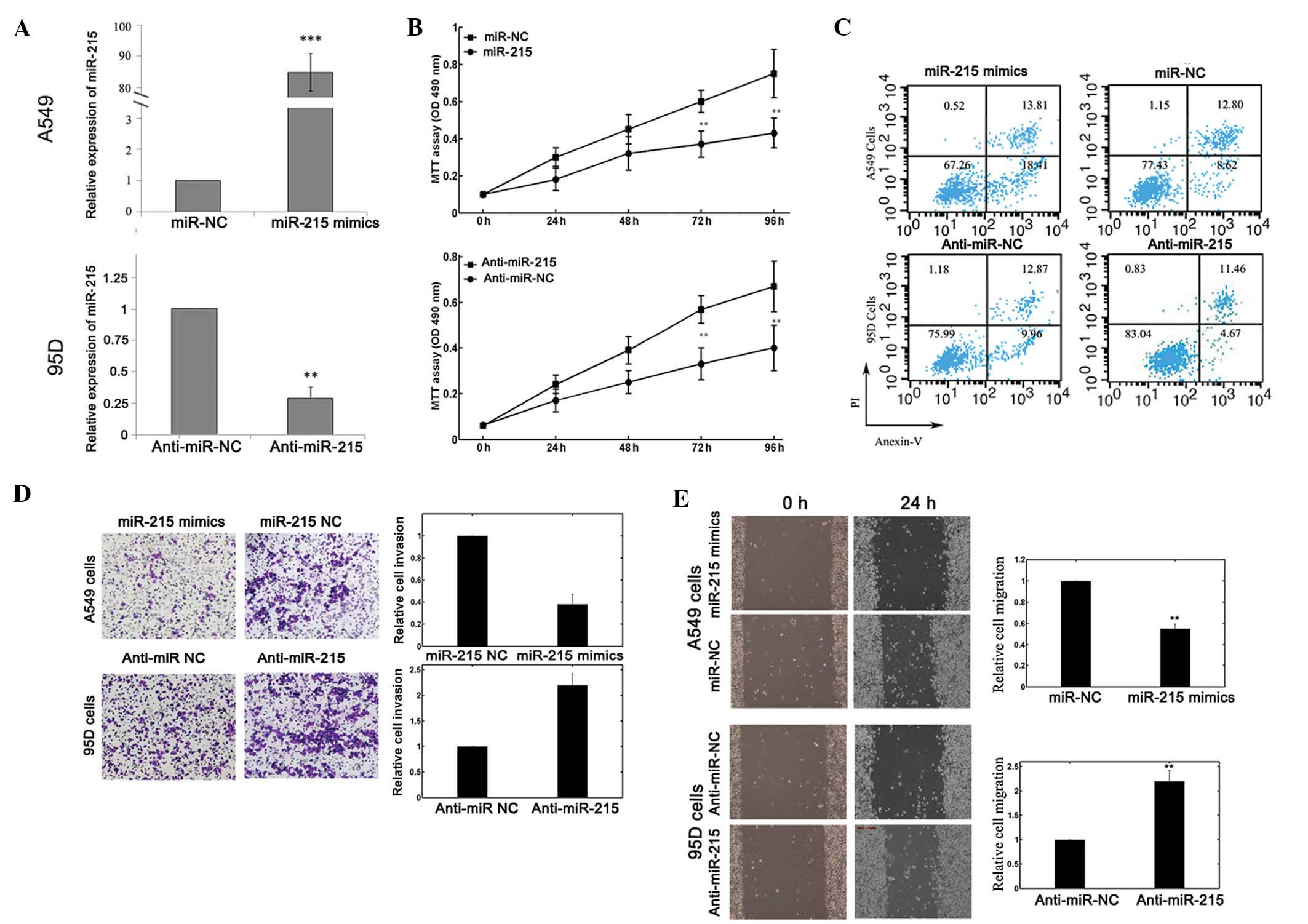 Mir215 Functions As A Tumor Suppressor And Directly Targets Zeb2 In 543 Cat Engine Diagram Figure 2 Effects Of Mir 215 Mimics Or Inhibitors Transfection On Biological Behaviors Non Small Cell Lung Cancer A549 95d Cells