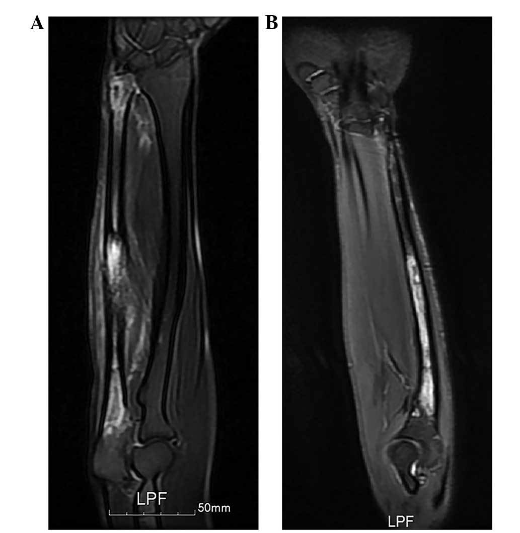 Ewings Sarcoma Of The Ulna Treated With Sub Total Resection And