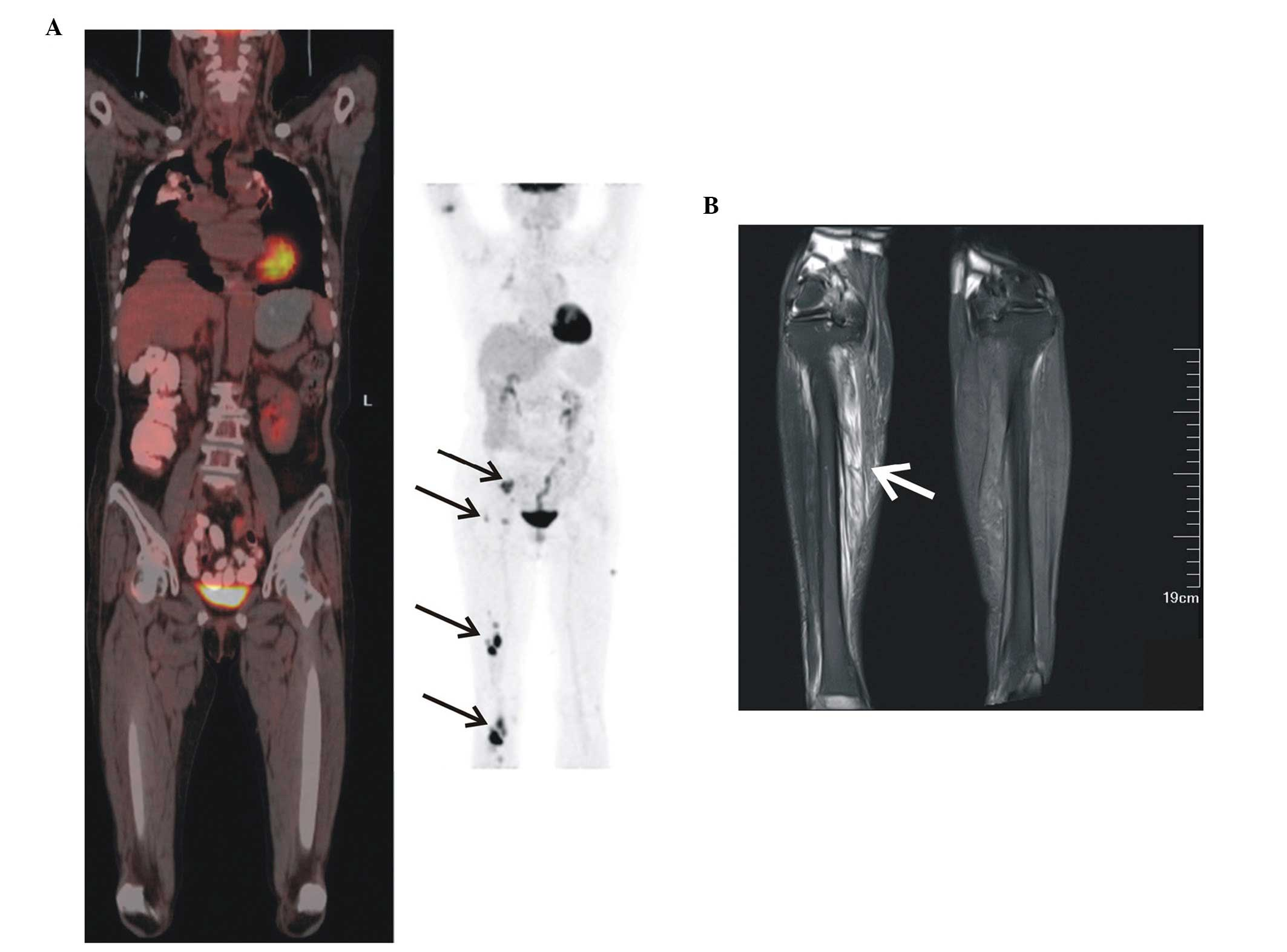 Primary Skeletal Muscle Diffuse Large B Cell Lymphoma A Case Report