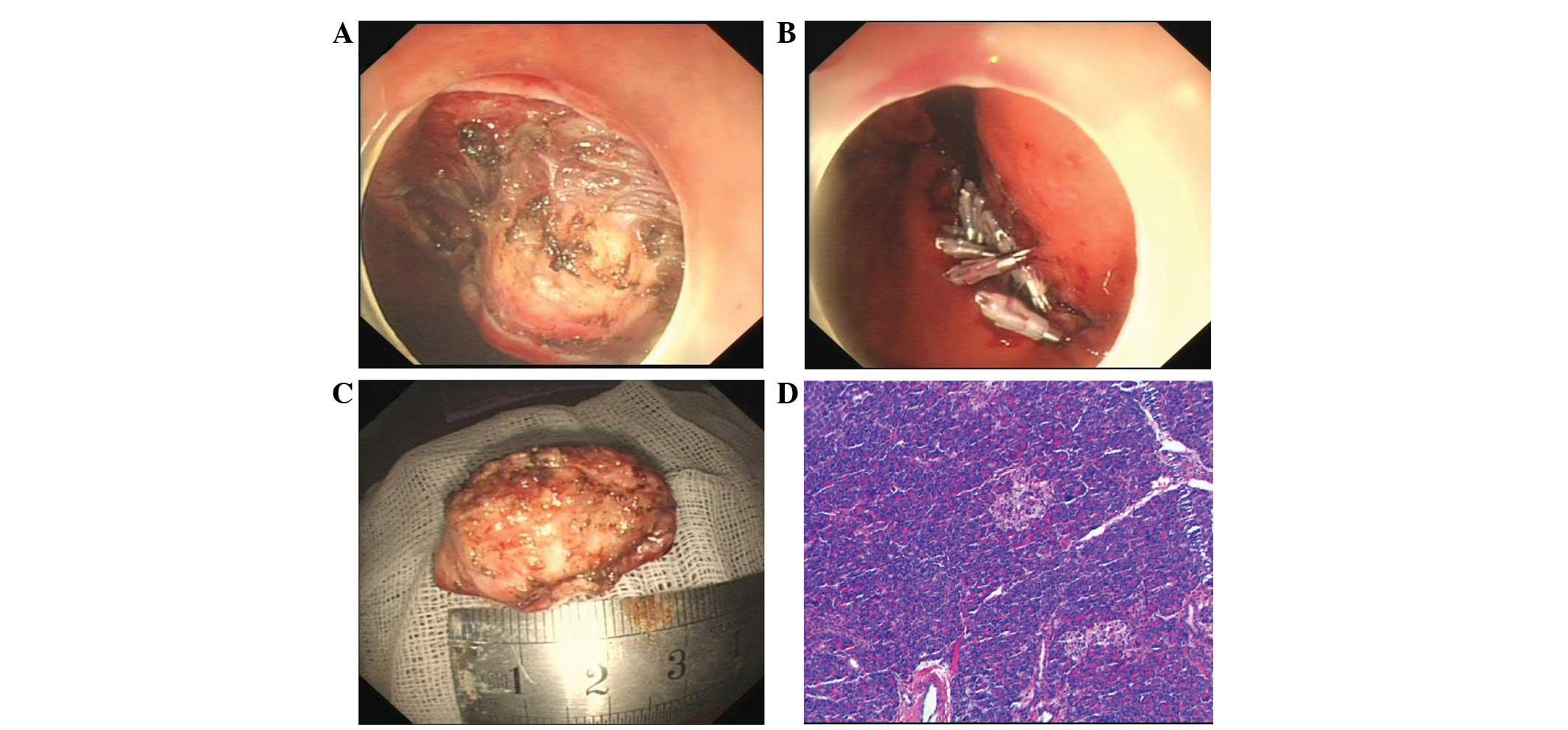 Gastric Heterotopic Pancreas Masquerading As A Stromal Tumor A Case