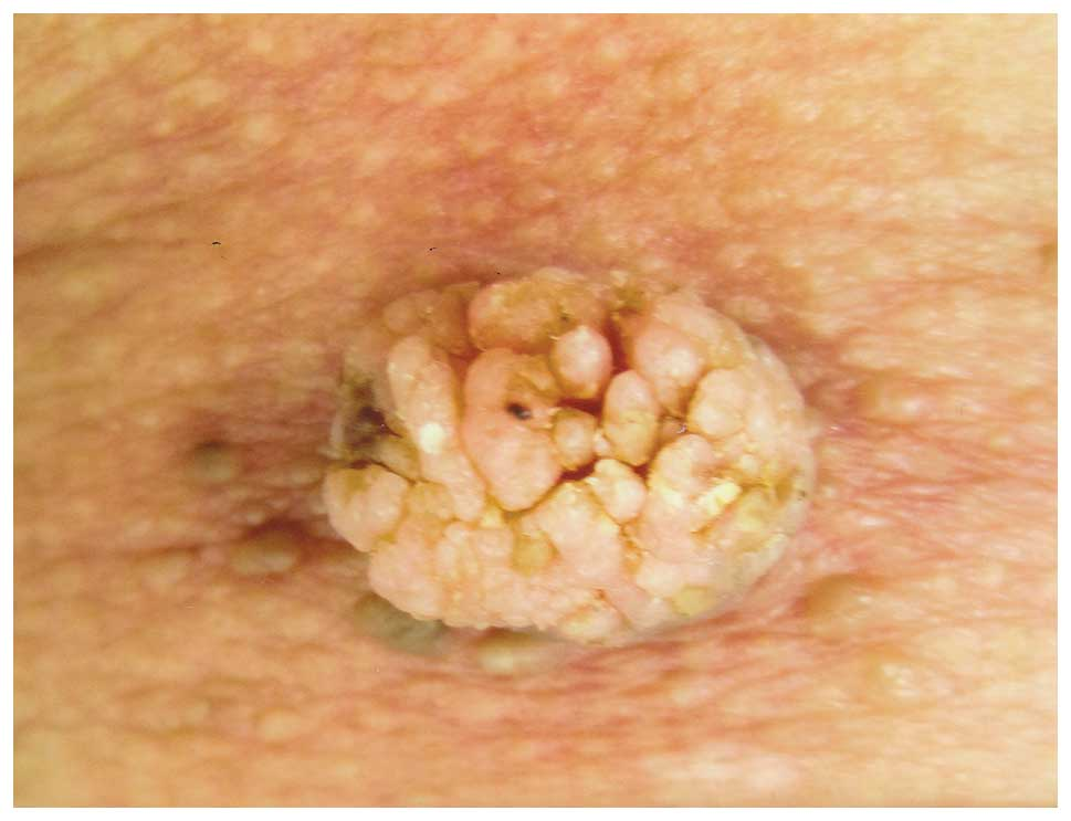 Papillary verrucous lesion, Surgical Breast Biopsy Options rostliny paraziti