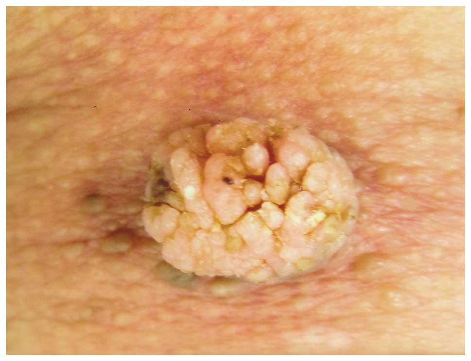 parazit medicament papilloma virus pe fata
