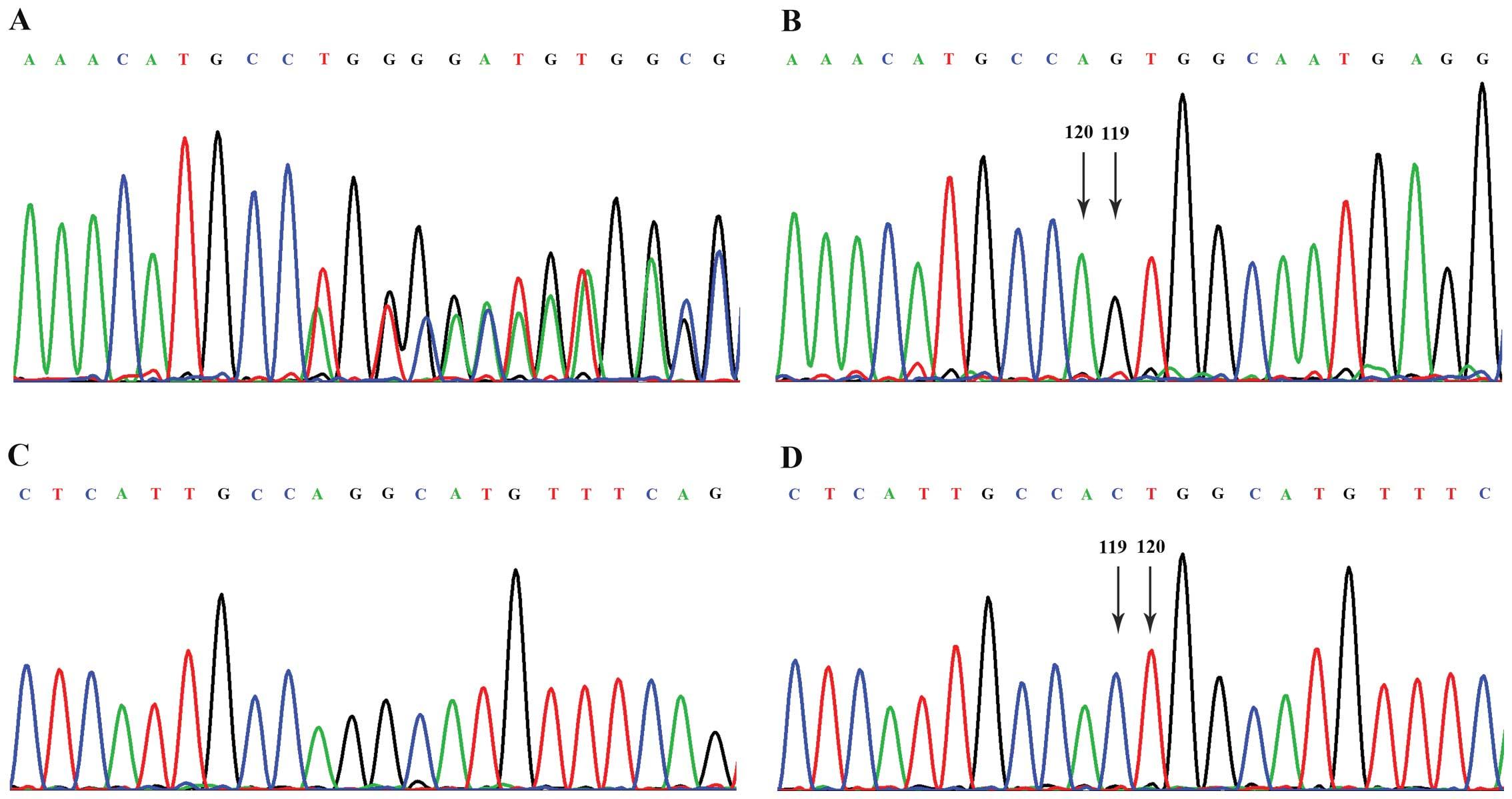 Identification of a novel frameshift mutation of the EXT2 gene in a ...