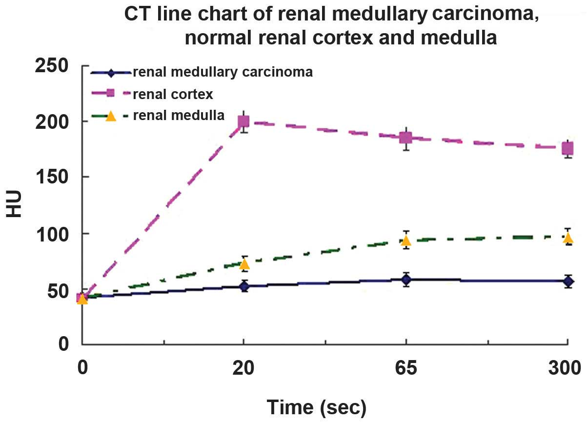 Clinical And Computed Tomography Imaging Features Of Renal Medullary Carcinoma A Report Of Six Cases