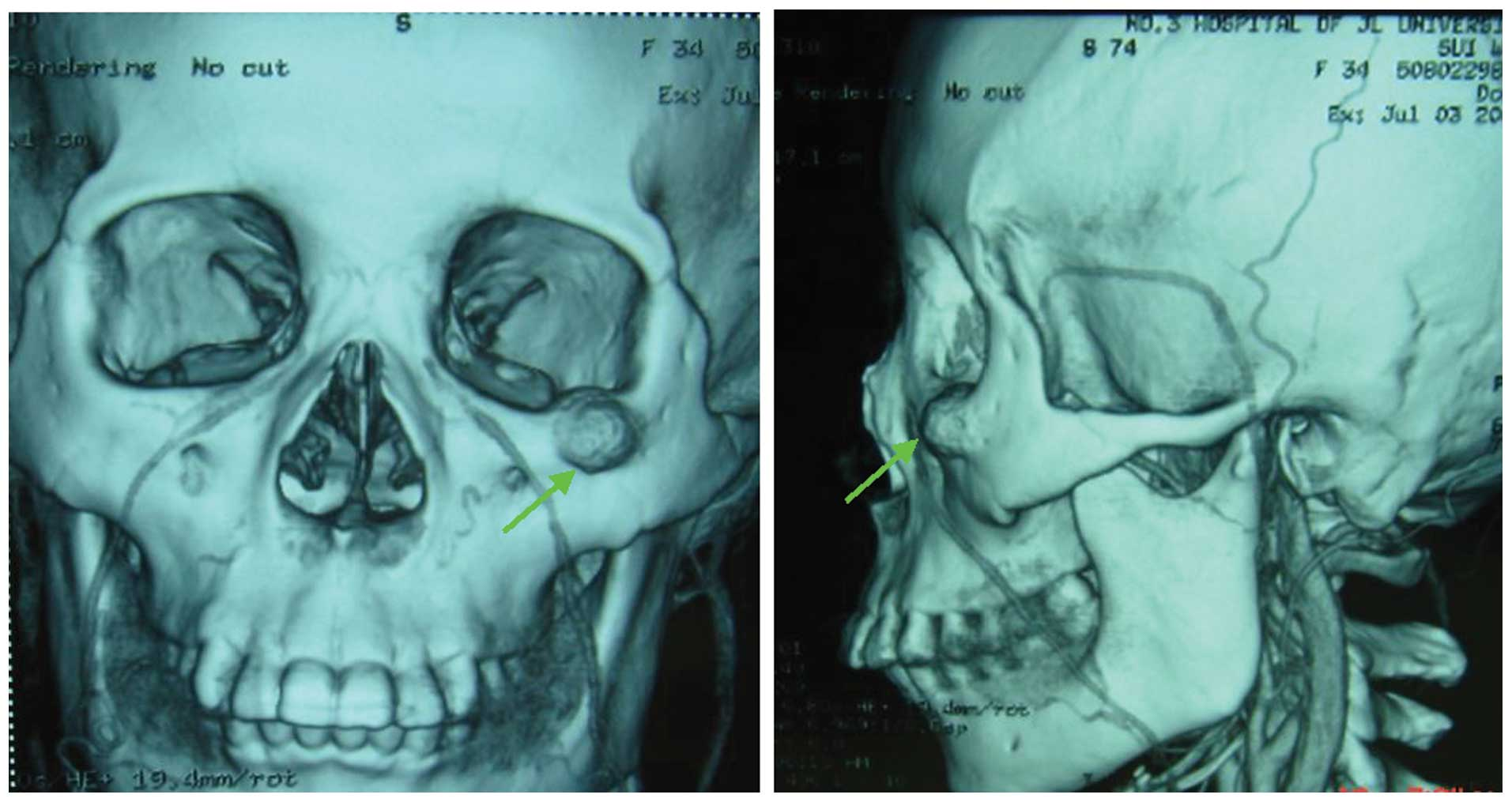 Aneurysmal Bone Cyst On The Left Zygomatic Arch Concomitant With