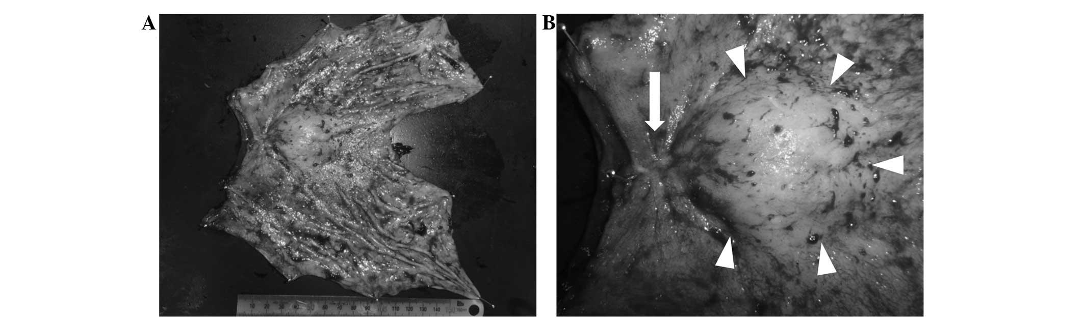 Xanthogranulomatous Gastritis