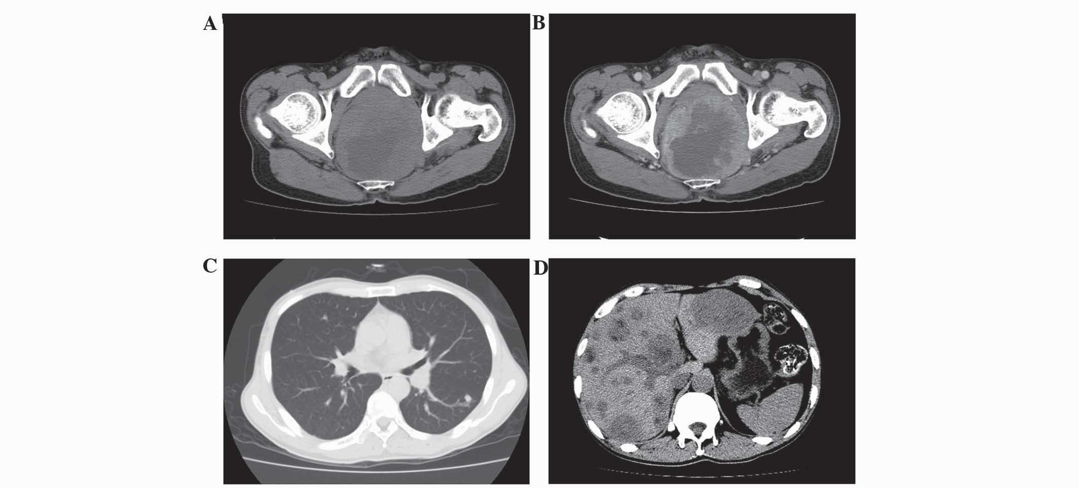Small Cell Carcinoma Of The Rectum A Report Of Imaging Results From Four Cases