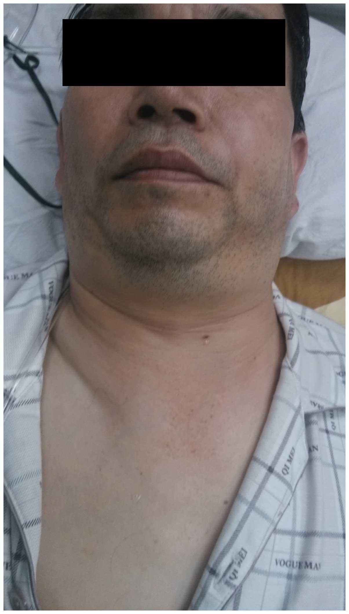 pneumothorax  pneumomediastinum  pneumoperitoneum and