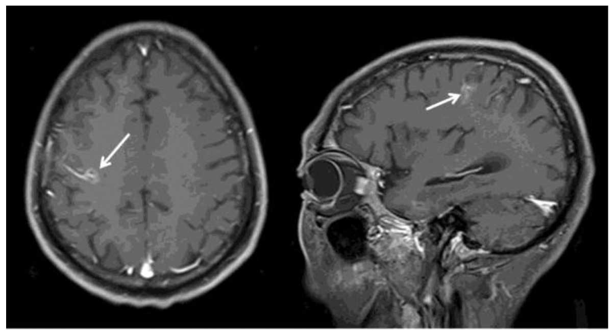 a case report of gastric cancer with brain metastasis