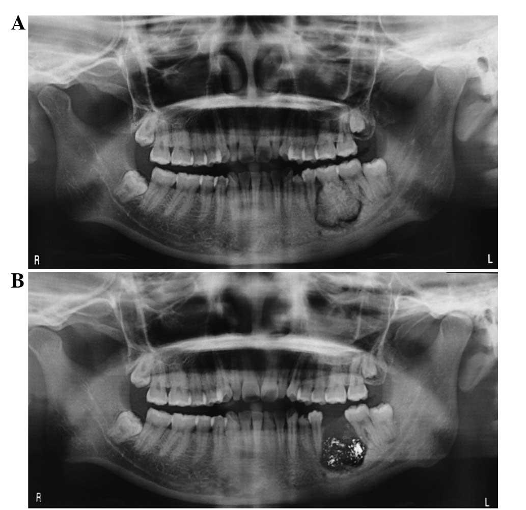 Misdiagnosis Of Osteosarcoma As Cementoblastoma From An