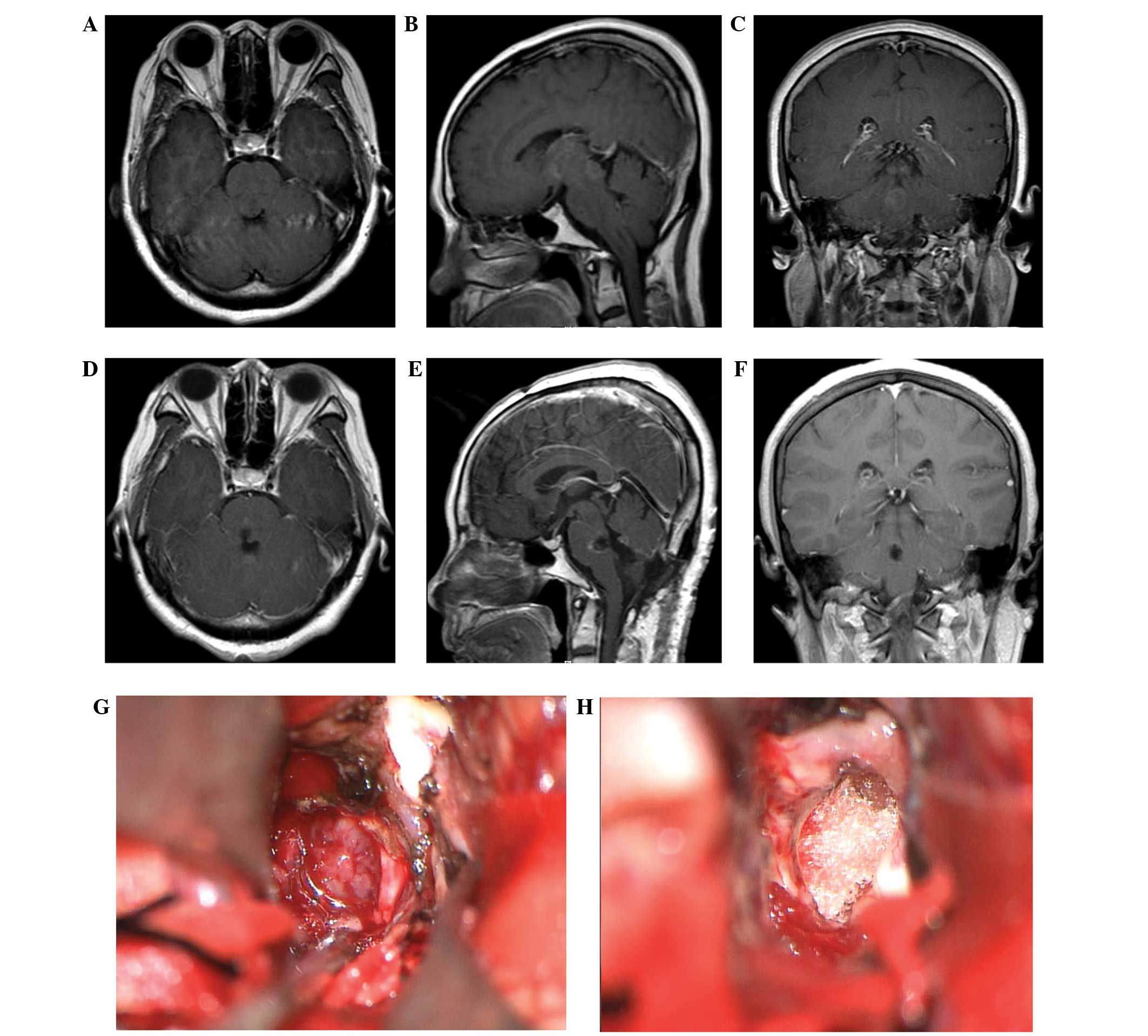 Microsurgical management of pediatric ependymomas of the fourth ...